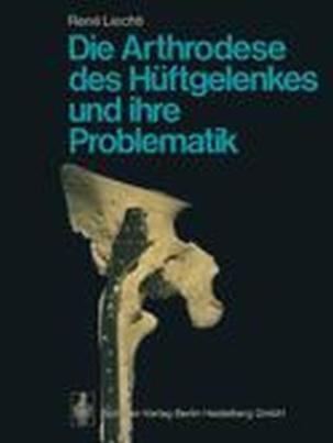 Die Arthrodese des Hüftgelenkes und ihre Problematik