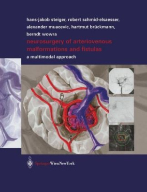 Neurosurgery of Arteriovenous Malformations and Fistulas