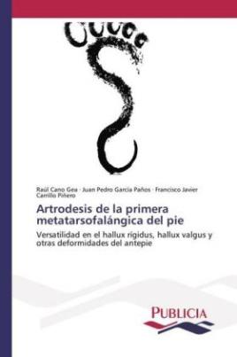 Artrodesis de la primera metatarsofalángica del pie